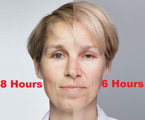 Sleep study volunteer, Sarah Chalmers, shown with 8 hours or sleep versus only 6 hours of sleep for a week.